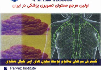 گسترش سرطان ملانوم توسط سلول های اپی تلیال لنفاوی