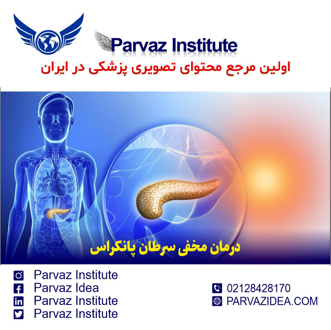 درمان مخفی سرطان پانکراس